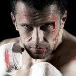 Types of Boxing Injuries and How to Prevent Them